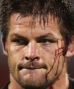 Richie McCaw.Maybe the greatest and one of the toughest rugby players of all time. What a captain, What an inspiration.