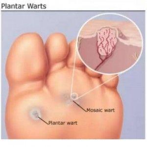 Natural Plantars Wart Treatment
