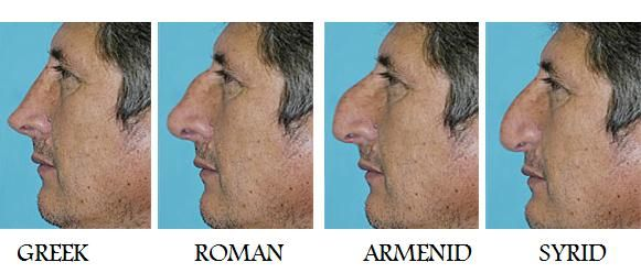 Different Nose Types Noses Pinterest Character Creation
