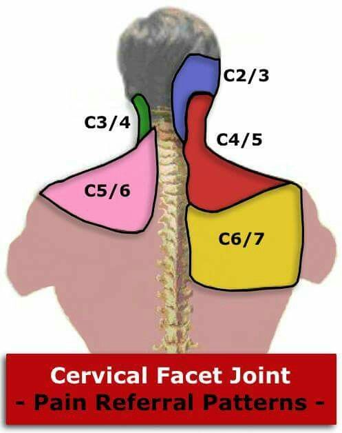 Cervical facet joint pain referral patterns. Visítenos en la Clínica de Artrosis y Osteoporosis www.clinicaartrosis.com PBX: 6836020, Teléfono Movil: 317-5905407 en Bogotá - Colombia.
