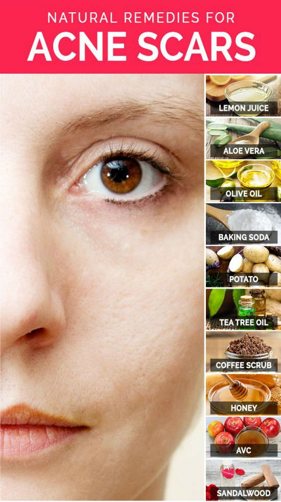 Listed below are some effective natural remedies that lighten up your acne scars and gives an even skin tone. But the only thing you need to do is that follow these remedies daily until you get complete relief from acne scars.