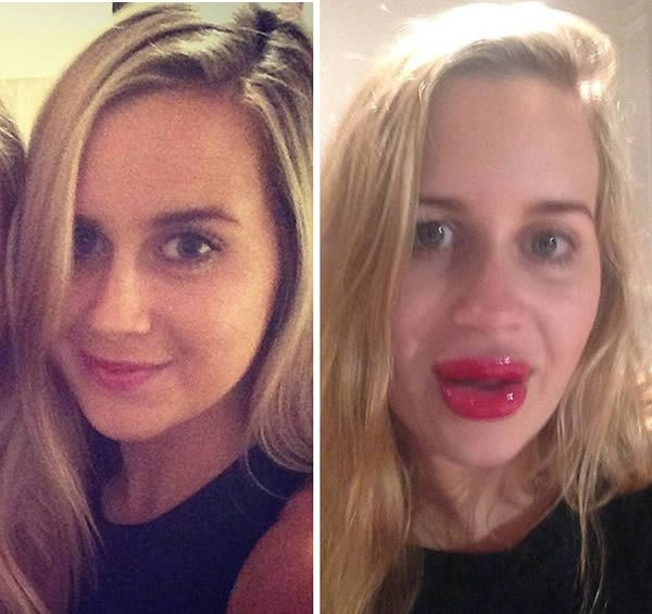 The woman left with a'trout pout' after using lip enhancer to look like Kylie Jenner