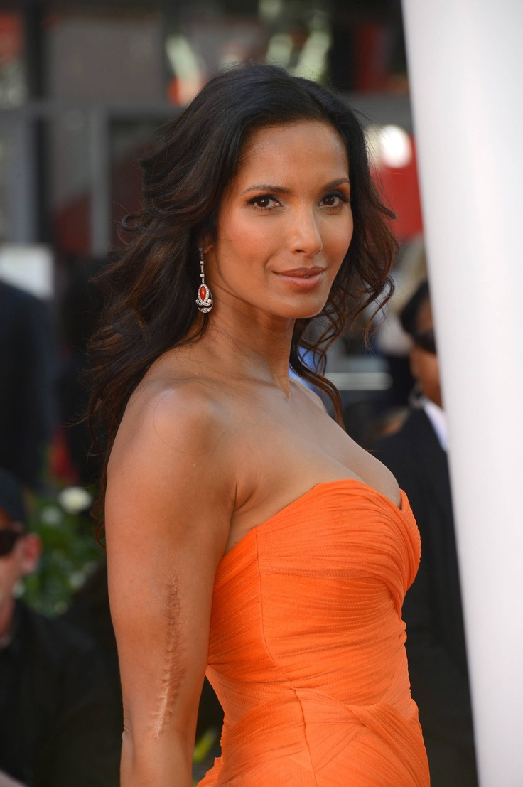 Gorgeous Padma Lakshmi, who is not afraid to show her scar which she acquired in an auto accident.
