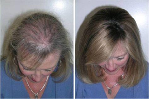 Este óleo é poderoso para renovar os cabelos e acabar de vez com a perda de fios   Cura pela Natureza