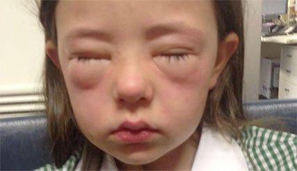 Plea to parents over schoolgirl's peanut allergyShannon P