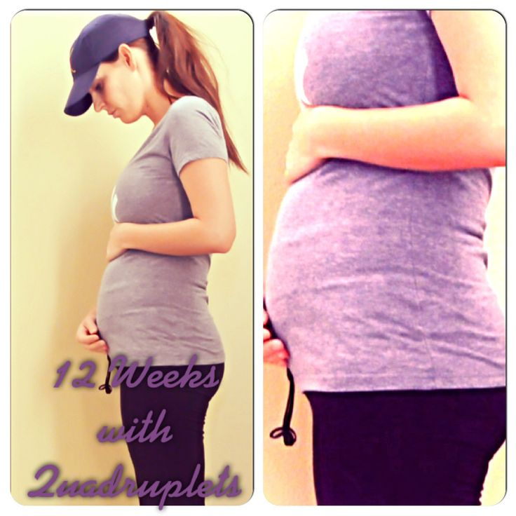 Pregnancy week by week quadruplets