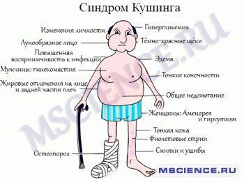 Синдром Кушинга. Симптомы, причины и лечение
