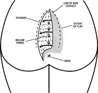 "Dr Immerman performs the ""Cleft-Lift"" procedure (Bascom Procedure). What are pilonidal cysts? A pocket of infection that occurs in the tailbone area is called a ""pilonidal"" cyst or abscess. These infections begin as enlarged pores in the crease between the buttocks. Pieces of hair can enter these pores, burrow their way underneath, and cause infection. …"