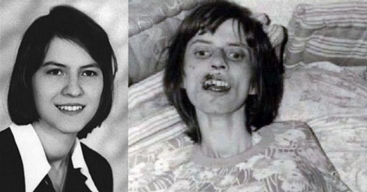#ΙΣΤΟΡΙΕΣ #Ανελίζε_Μίχελ #ΓΕΡΜΑΝΙΑ Πέθανε μετά από 67 συνεχόμενους εξορκισμούς. Η «υπόθεση της Ανελίζε» που αναστάτωσε τη Γερμανία και…