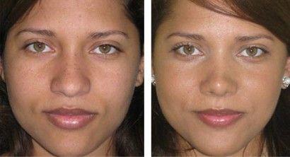 fotos de rinoplastia antes de depois afinamento do nariz