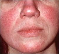 The 20 Best Home Remedies for Rosacea | Natural Alternative Remedy