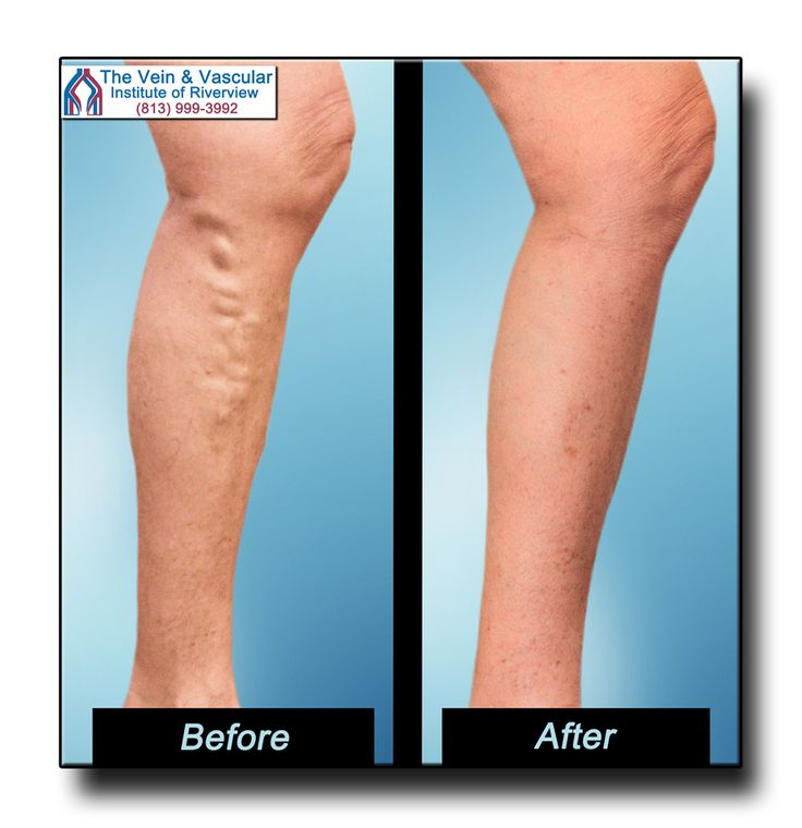 Riverview Vein Specialist Vein Removal Patient Pictures. Our Riverview vascular physicians can restore your legs back to health through laser varicose vein removal. To find out more, schedule a Vein Consultation by calling (813) 999-3992.  https://www.veinandvascularinstituteofriverview.com/riverview-varicose-vein-removal-pictures/