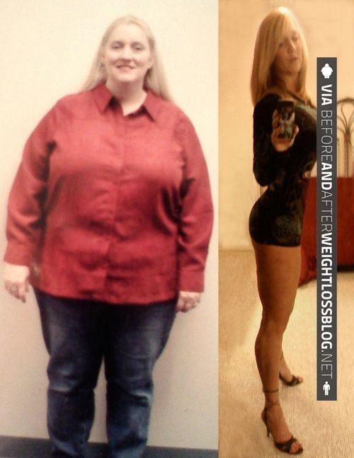 gastonia weight loss center