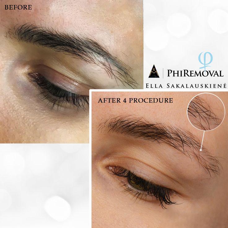 Pin by Ella Sakalauskiene on Eyebrows Removal   Eyebrows ...