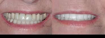 Seeking a Prosthodontist in Surprise, AZ for your painful dental issues? Pay a visit at the Sun City Dental Clinic, which offers its expertise in resolving various kinds of dental problems. Get treated from the an expert ProsthodontistU+0021