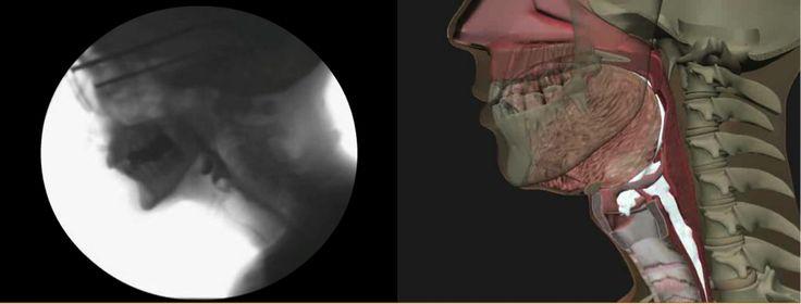 Barium Swallow | Johns Hopkins Medicine