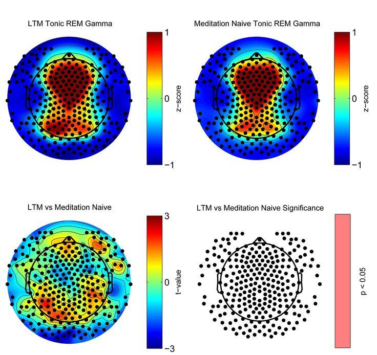 PLOS ONE: Experienced Mindfulness Meditators Exhibit Higher Parietal-Occipital EEG Gamma Activity during NREM Sleep