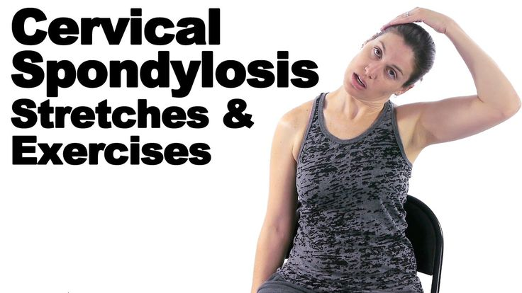 Cervical spondylosis is a general term for age-related wear and tear of the spinal discs in your neck. As the discs dehydrate and shrink, signs of osteoarthritis develop and degeneration happens. This can cause achiness and soreness as well as decreased motion in the neck. See Doctor Jo's blog post about this at: http://www.askdoctorjo.com/cervical-spondylosis-stretches-exercises