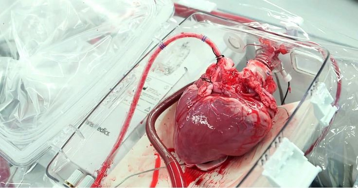 1967- The first human heart transplant was completed by South African surgeon  Christiaan Barnard, on December 3, 1967, at the Groote Schuur Hospital in Cape Town, South Africa. Just three days later, Adrian Kantrowitz performed the world's first pediatric heart transplant at Maimonides Hospital in Brooklyn, New York.