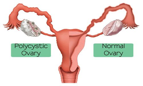 Help with PolyCystic Ovarian Syndrome (PCOS) ... always pictured this differently, somehow