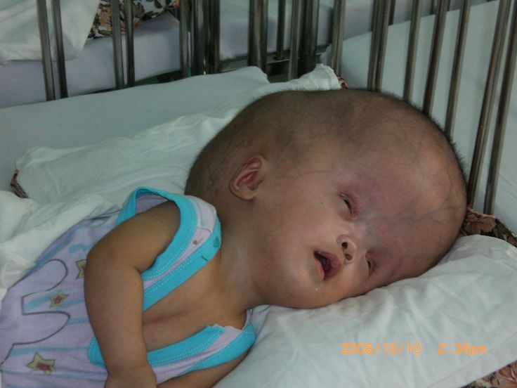Agent Orange Diseases affect many today | Baby face, Agent ...