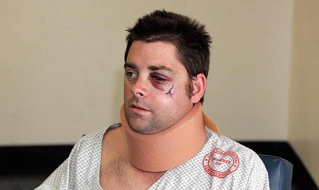 Assault victim sues Gold Coast nightclub Crime and Court News | goldcoast.com.au | Gold Coast, Queensland, Australia For professional criminal lawyers, visit Howden Saggers Lawyers www.howdensaggers.com