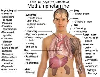 drug abuse: Substance Abuse, Drug Abuse, Social Work, Medical, Drugs, Mental Health, Meth Addiction