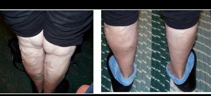 The pictures below are before and after images of a women who suffered from painful varicose veins. She mix 50 drops of Helichrysum in 8 ounces of an all-natural lotion base and applied it to her legs for six weeks. This is a great example of the power of Young Living Helichyrsum Essential oil!  I would use a coconut oil, or massage oil from YL.  youngliving.org/goodplans