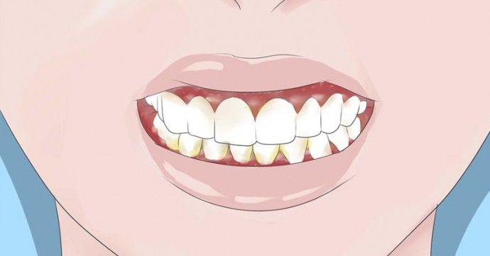5 Natural Remedies for Gum Disease That Beat Store Bought Toothpaste and Mouthwash