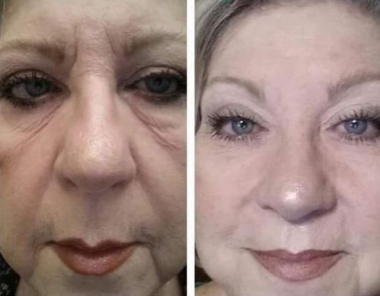 Facelift Workouts To Better Your Looks