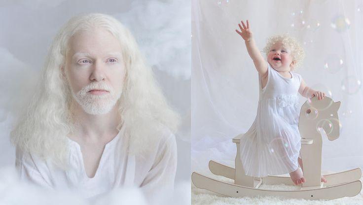Fotógrafa Russa faz ensaio encantador com pessoas albinas - Razões para Acreditar