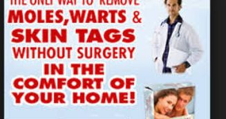 ==>  moles warts & skin tags removal review  moles warts & skin tags removal review :  Everyone wants to have smooth blemish-free skin but problems like moles warts skin tags and other imperfections exist. Lets  http://www.wartalooza.com/general-information/natural-ways-to-get-rid