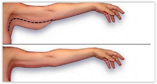 Un programma di allenamento da 27 minuti, da praticare 3 volte a settimana, fantastico per tonificare le braccia!