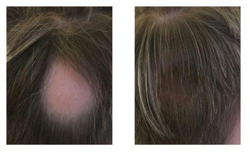 #Dölj din utväxt - Har ditt huvud börjat bli tunnhårig? OYEZ! ger dig en helt naturlig hårman, som du är fri att styla precis som du själv önskar. SMS: 0708 67 02 77.