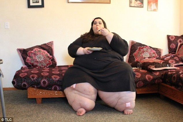 Obese: At her heaviest, Amber tipped the scales at an unhealthy 46st (657lbs)...