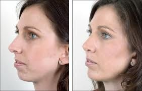 Get information online about our Chin Implant procedure and recovery. Facial implants can be used to enhance structural integrity and create a more balanced and attractive face. We have latest equipments for surgery. Visit our website to have more details.