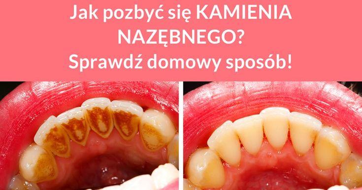 Jeżeli chcesz odpowiednia zadbać o swoje zęby to nie musisz kupować różnych środków dostępnych w sklepach i aptekach. Możesz zrobić sobie własny płyn który pomoże Ci usunąć kamień, a także ...
