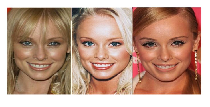 Total Plastic Surgery Brings Jaime Bergman Much More Charm On Her Deal With Following Surgery - http://www.aftersurgeryjob.com/total-plastic-surgery-brings-jaime-bergman-charm-following-surgery/