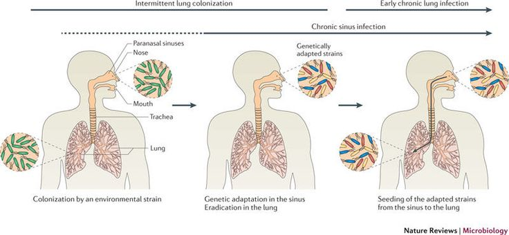 Adaptation of Pseudomonas aeruginosa to the cystic fibrosis airway: an evolutionary perspective