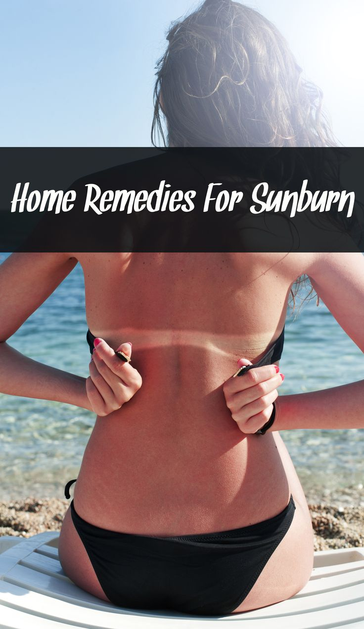 Home Remedies For Sunburn And Glowing Complexion, sunburn relief, sunburn treatment, at home remedies for sunburn, sunburn itch relief, 2nd degree sunburn treatment, sunburn cures