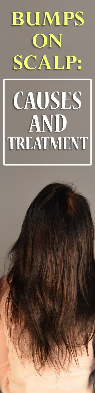 how to get rid of red bumps on scalp