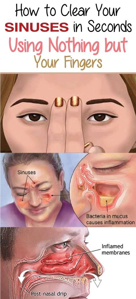 Blocked sinuses are a common problem for people of all ages. It is caused by numerous different reasons like weather changes, colds or allergies.
