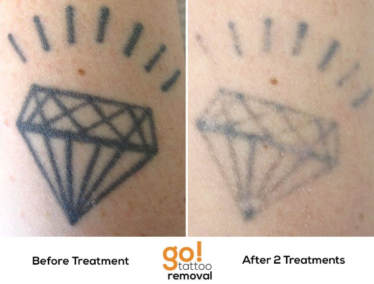 This diamond isn 39 t shining so bright after 2 laser tattoo for Tattoo turned black after laser