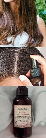 Grow New Hair Treatment, Revives sleeping follicles and promote healthy hair growth