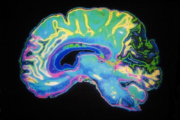 7 ошибок, которые ежедневно совершает ваш мозг .: biboroda