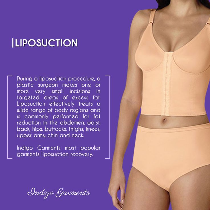 During a liposuction procedure, a plastic surgeon makes one or more very small incisions in targeted areas of excess fat. Liposuction effectively treats a wide range of body regions and is commonly performed for fat reduction in the abdomen, waist, back, hips, buttocks, thighs, knees, upper arms, chin and neck.  Shop now!!  www.indigogarments.io