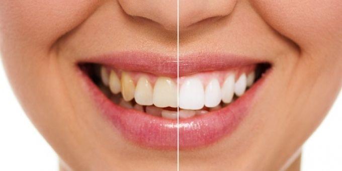 هل تعاني من البقع البنية للأسنان اليك الحل