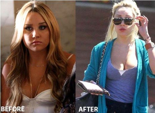 Celebrity amanda bynes plastic surgery - http://www.celeb-surgery.com/celebrity-amanda-bynes-plastic-surgery-2/?Pinterest