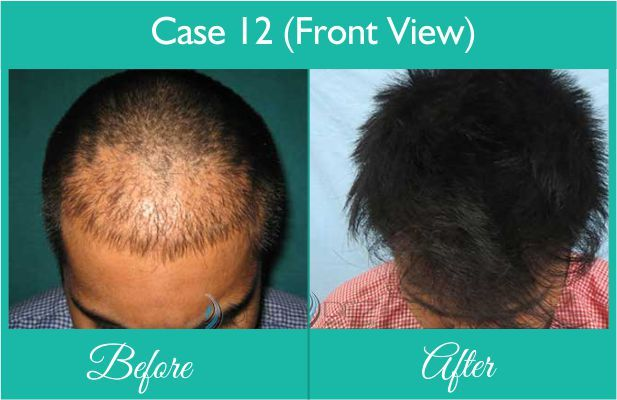 Baldness Cure done at Dezire Clinic Pune. Visit our website to know details of Baldness Cure Cosmetic Surgery in India, Cost of Baldness Cure. Call on 9222122122 for free consultation.