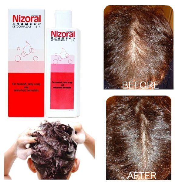 Nizoral ketoconazol 2% shampoo fast strong anti dandruff hair loss 50,100,200 ml #Nizoral